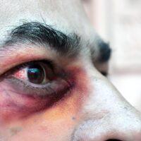 """Casos de """"hongos negros"""", una rara infección que aumenta entre pacientes con COVID-19"""